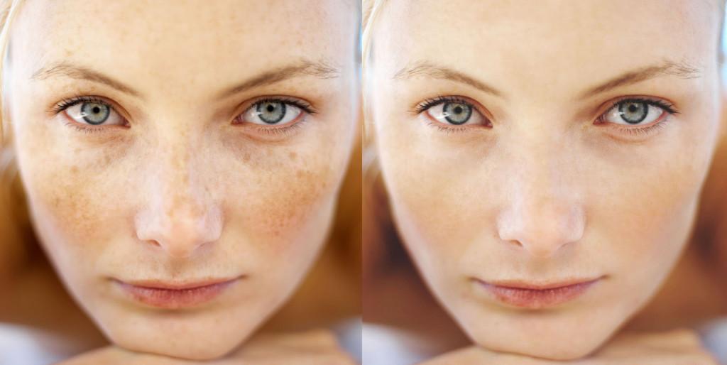 Отбеливающая маска для лица с чувствительной кожей