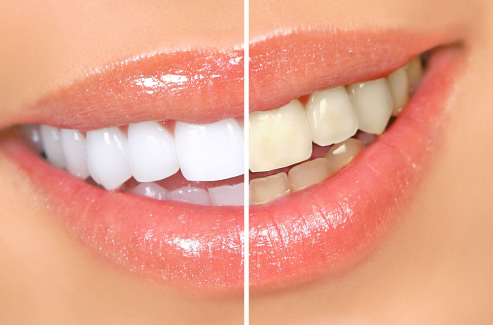 отбеливание зубов в липецке цены