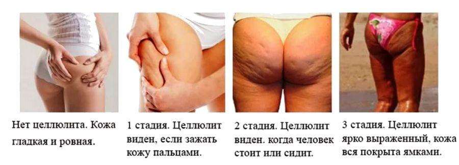 Причины возникновения целлюлита у женщин - 5 нездоровых привычек