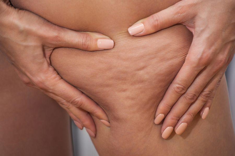 Причины возникновения целлюлита у женщин
