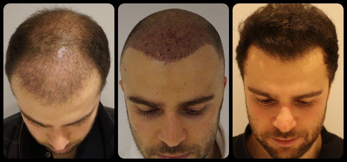 Пересадка волос: виды